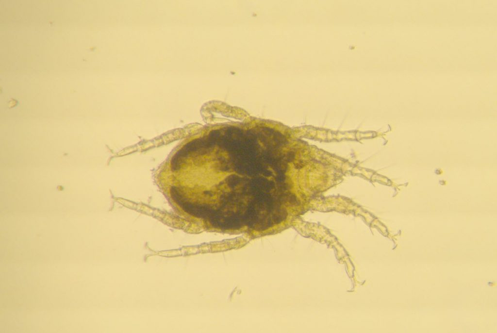 microscope image of a marine mite by Emma Perry
