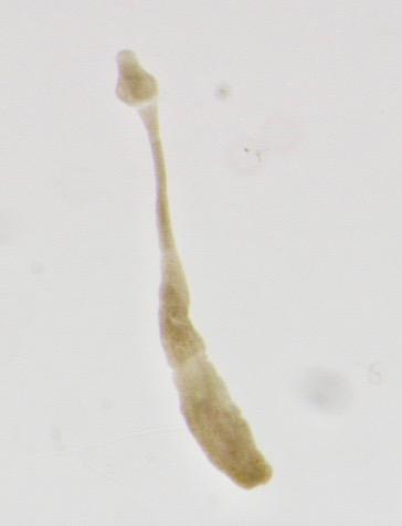 Echinococcus-spp.-adult